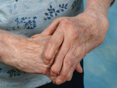 arthritis_hands