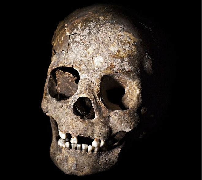 A skull exhumed from the Lapa do Santo cave in Brazil shows evidence of modification such as tooth removal. Hundreds of remains from the site show that beginning around 10,000 years ago, ancient inhabitants used an elaborate set of rituals surrounding death.